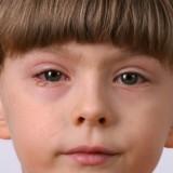 W ostatnich latach nastąpił wzrost zachorowań na choroby alergiczne oczu.