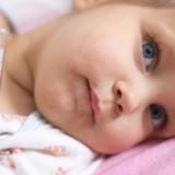 Ospa początkowo objawia się gorączką i złym samopoczuciem.