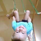 Szczyt występowania przepuklin kresy białej przypada u dzieci kilkuletnich. Występuje kilkakrotnie częściej u chłopców niż u dziewczynek.