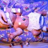 Mózg noworodka wygląda tak samo jak mózg dorosłego człowieka. Choć potrzeba czasu, by osiągnął ostateczną wielkość i wykorzystał swoje możliwości, od początku mamy wpływ na jego rozwój!