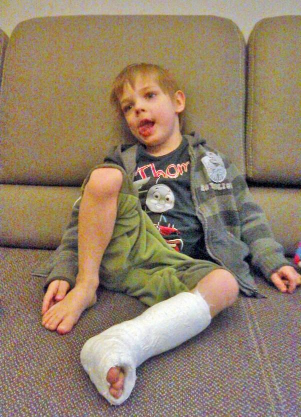 minął tydzień od wyjścia ze szpitala i GIPS na lewej nodze :(